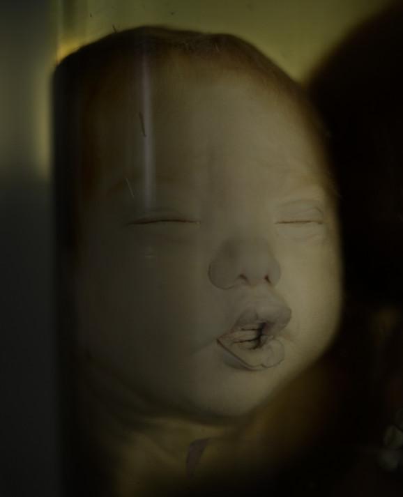 På Tu Du hospitalet findes der et rum med store glaskrukker. Her opbevares en brøkdel af de mange misdannede og ofte dødfødte børn, som menes at være ofre for giften i Agent Orange. Dette barn blev født i 1981 af Nguyên Thi Thoi. Hun kom fra Thủ Dầu Một.