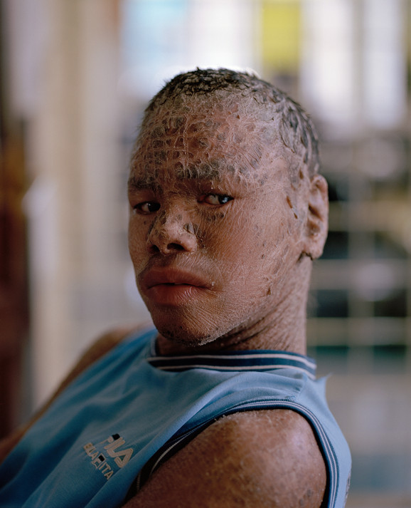 Nguyen Minh Anh bliver kaldt 'Ca', som betyder fisk på vietnamesisk. Det er noget de andre børn har fundet på, fordi hans sygdom gør, at huden skaller af.