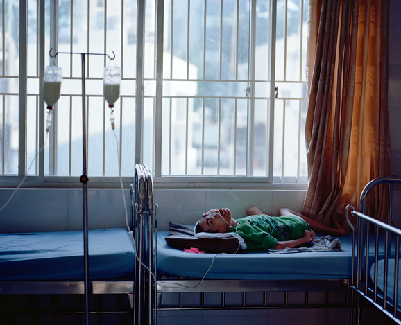 Pham Thanh Hông Dúc har været bundet til sengen, siden han blev født for 19 år siden. Han ligger ofte med ulidelige smerter. Her får Dúc mælk gennem en slange i næsen.